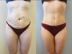 Tampa Tummy Tuck Patients Photo Gallery
