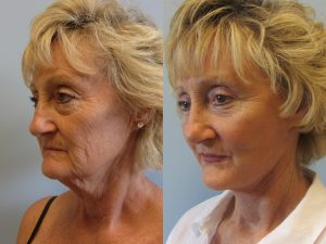 Facelift Surgery Tampa