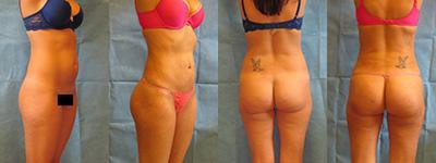 Skinny Brazilian Butt Lift